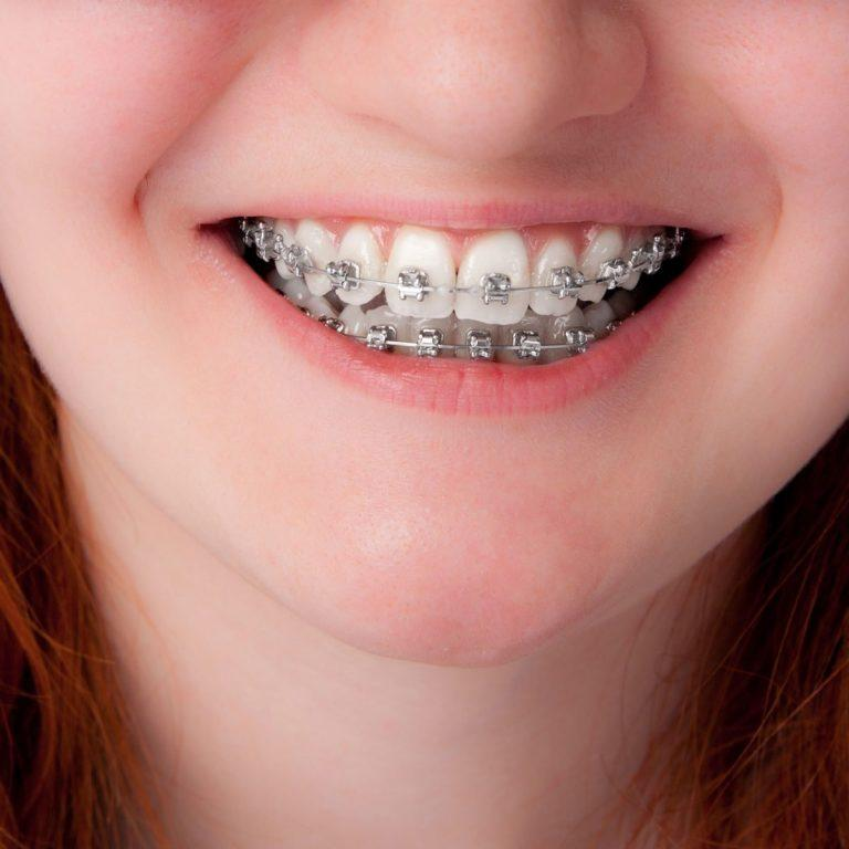 Why Do-It-YourselfBraces Are A Bad Idea