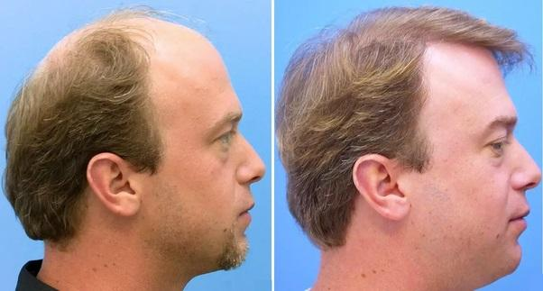 Get here best hair transplant treatments in London