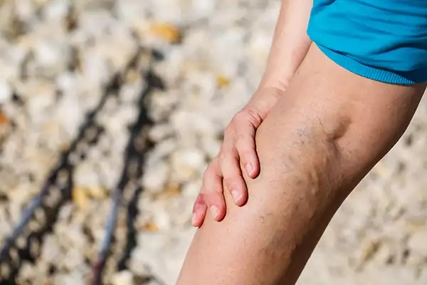A Varicose Veins Treatment May Save Your Life In Long Run