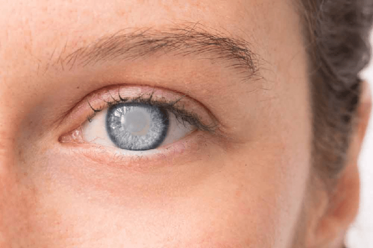 Cataracts symptoms and effects